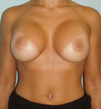 Accept. breast augumentation b cup suggest