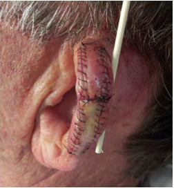how to detect skin cancer on ear