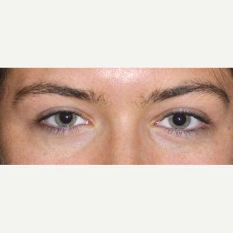 [Image: Eyelid-Surgery-after-1733129-2232018.jpg]