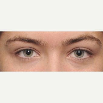 [Image: Eyelid-Surgery-before-1733129-2232017.jpg]