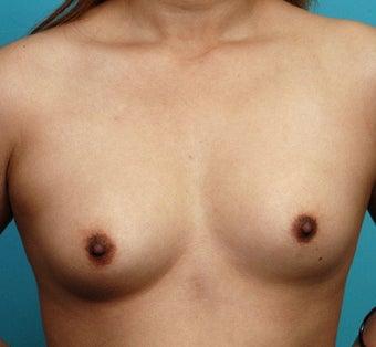 Breast asymmetry icd 9