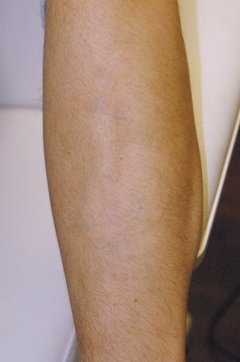 Tattoo removal photo from louis m dejoseph md atlanta for Atlanta tattoo removal