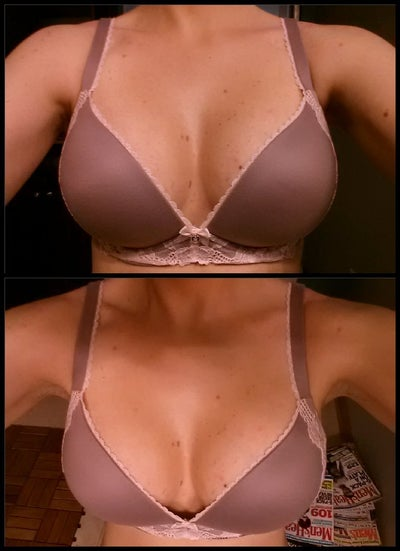 breast implants chicago jpg 422x640