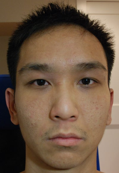 Fraxel To Reduce Acne Scarring Vancouver Bc Fraxel