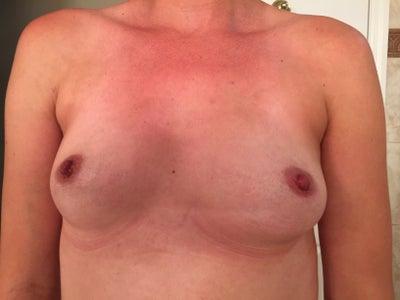 Breast dr diaco