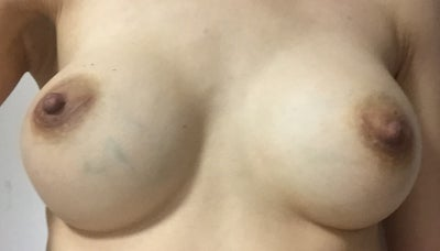 Asymmetrical Nipples 51