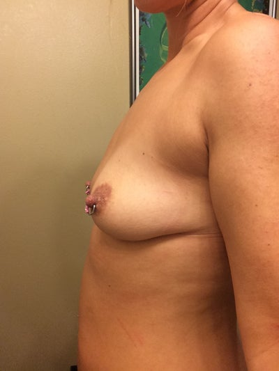 Pregnant no breast changes