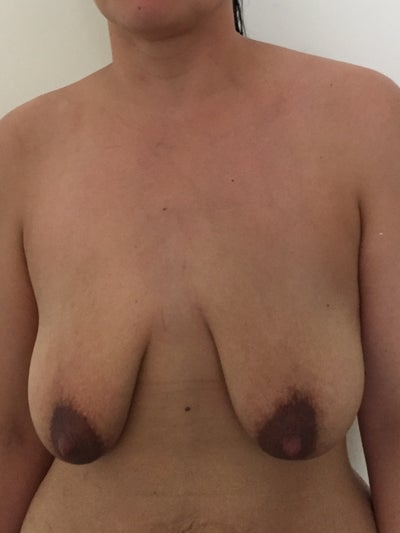 augmentation breast lift photo