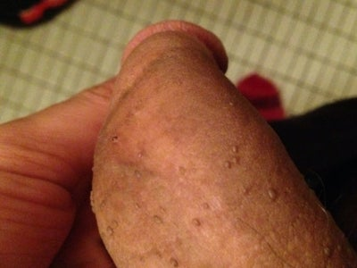 Brown Bumps On Penis 74