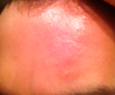 Get Rid of Forehead Bumps (Subclinical Acne)