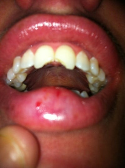 Veneers Or Crowns For Chipped Front Teeth? (photo) Dentist