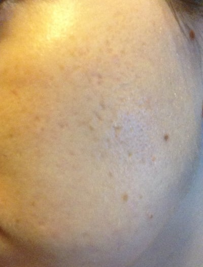 how to get rid of sun damage spots