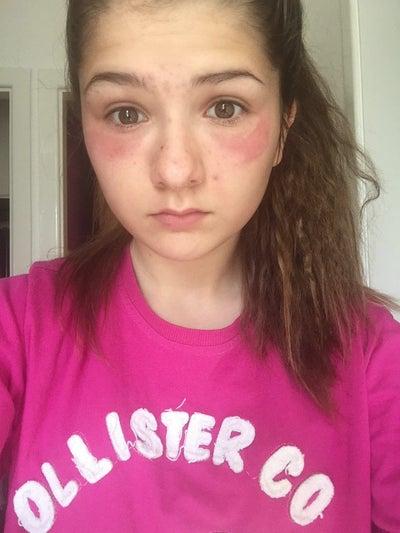 how to help my skin