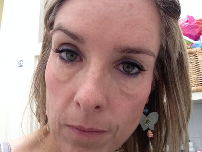 Bags And Lumps Under The Eyes After Botox And Radiesse