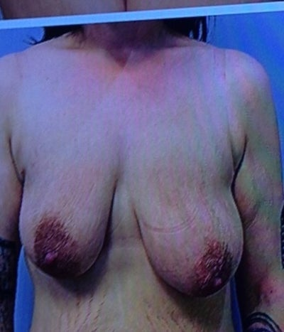 Different Size Nipples 45