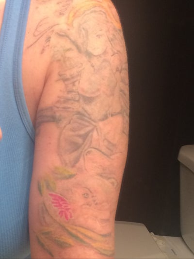 Half sleeve tattoo removal with picosure laser picosure for How much does a full sleeve tattoo cost