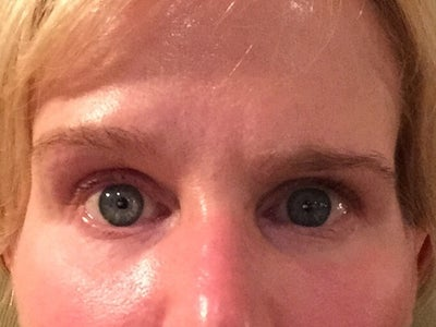 Why are my eyebrows uneven after brow lift? (Photo) Doctor ...
