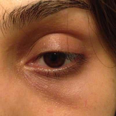 How to repair or best treatment for my hollow/sunken eyes ...