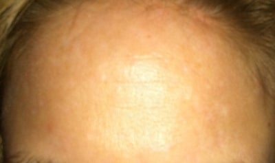 How Can I Remove Old Acne Scars on my Forehead? Doctor