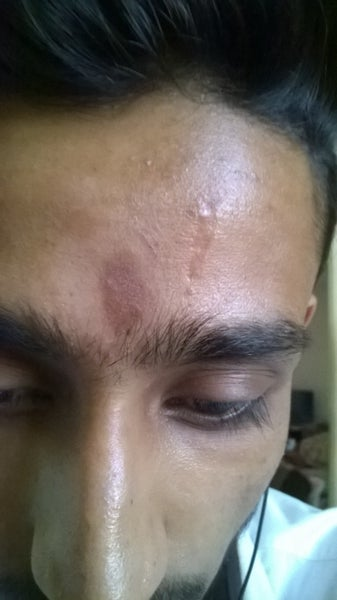 How To Remove The Scar From My Forehead Photo Doctor