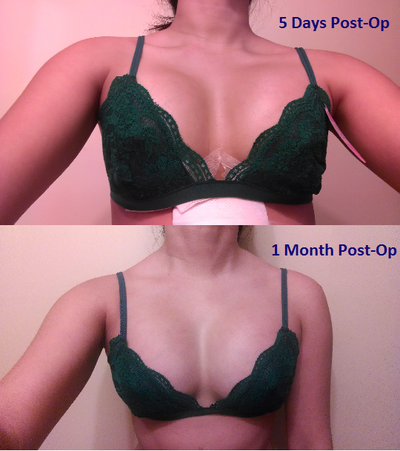 String Breast Implants Photos