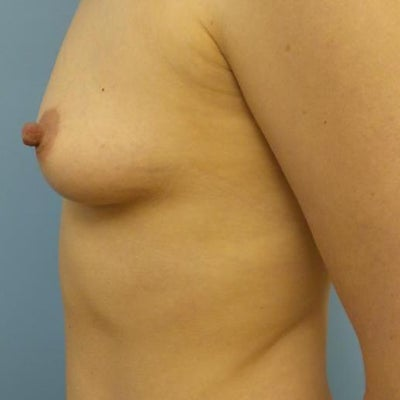 billings breast enlargement jpg 1200x900