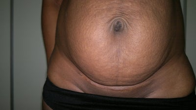 Tummy after birth pictures The Tummy Mummy: Michelle Madrid-Branch, Marin Thurber