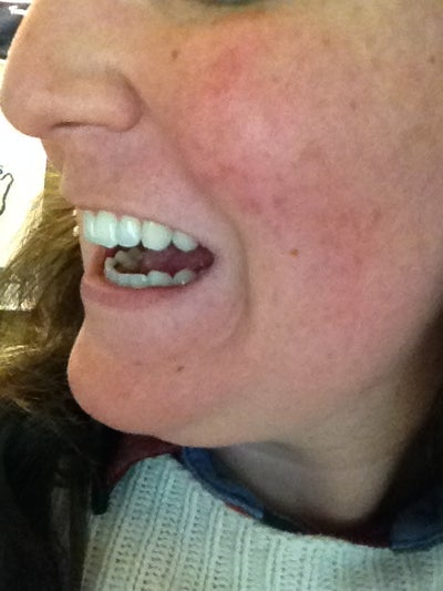 I Have A Front Loose Tooth. Will I Lose It? (photo