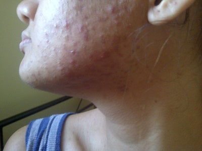 I Have Tiny Red Acne Itchy Bumps on Face? (photo) Doctor