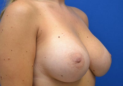 Breast reduction in europe