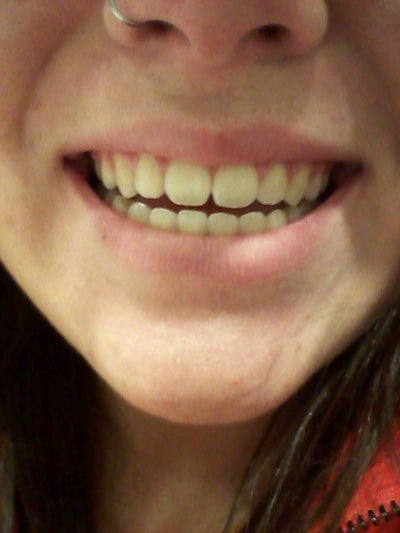 What Should I Look Into For Making My Front Teeth Less
