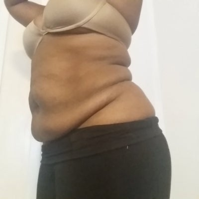 44 Year Old Single Mom of Three (All by C-section) New ...