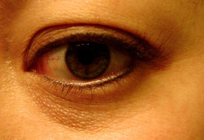 how to fix colour of skin under eyes