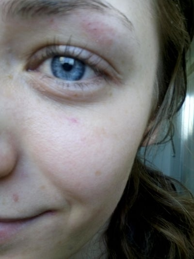 What treatment would be best for my sunken eyes and dark ...
