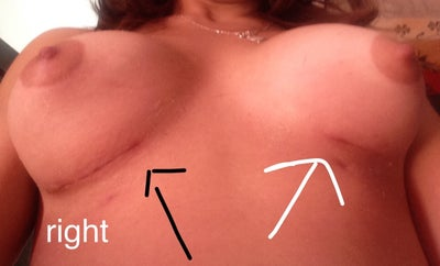 breast video implant moves