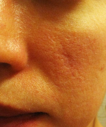 What Type of Scar Is Left From Cystic Acne, and What's the