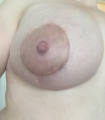 Different Size Nipples 75