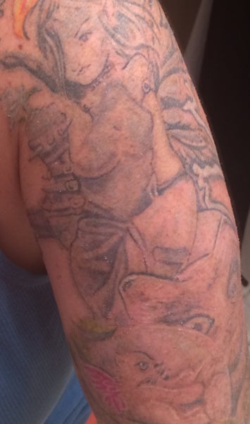Half sleeve tattoo removal with picosure laser picosure for Tattoo removal nj