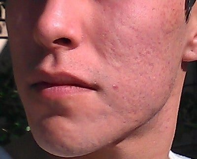 Severe Acne Scars Treatment Please Help Good Docto...