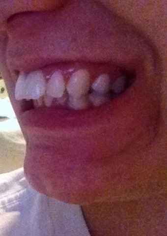 Severe Overjet and Overbite Treatment. Please Help! (Photo ...