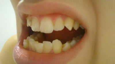 how to make my teeth straight