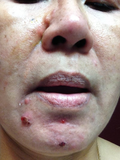 acne cysts treatement adults