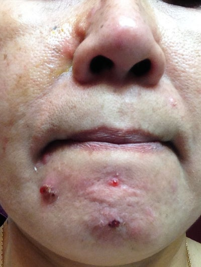 acne adult cystic