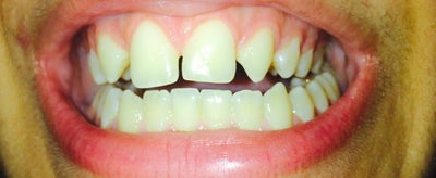 how to close a gap with braces