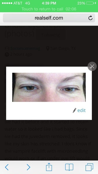 how to fix crepey eyelids