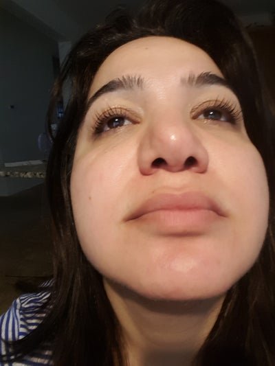 Puffy and crooked nose 3 months after Rhinoplasty. Any ...
