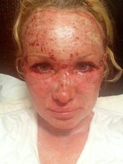 pilule anti acné et qui fait maigrir zone