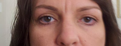 Asymmetry and Droopy Lower Lids After Blepharoplasty ...