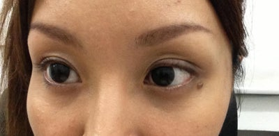 Hollow Eye with Dark Circles and Fine Lines? (photo ...