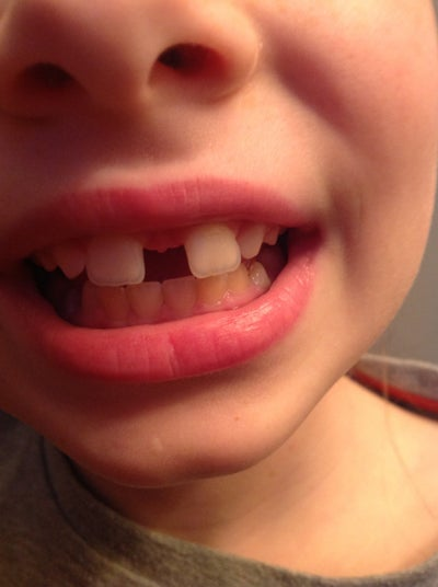 My Daughter Has A Very Large Gap In Her Front Teeth And